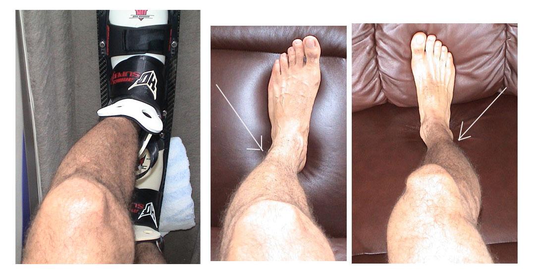 http://www.proskicoach.com/forum/uploads/6212_ski_legs.jpg
